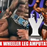 Flex Wheeler,緊急手術で右足を切断